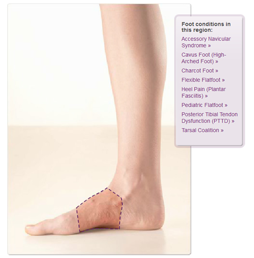 acfasinteractive-foot-diagram archives • shore foot and ankle, Human Body